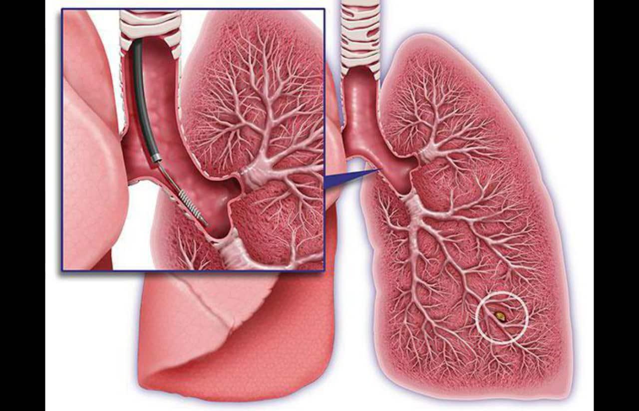 broncoscopias diagnosticas en malaga