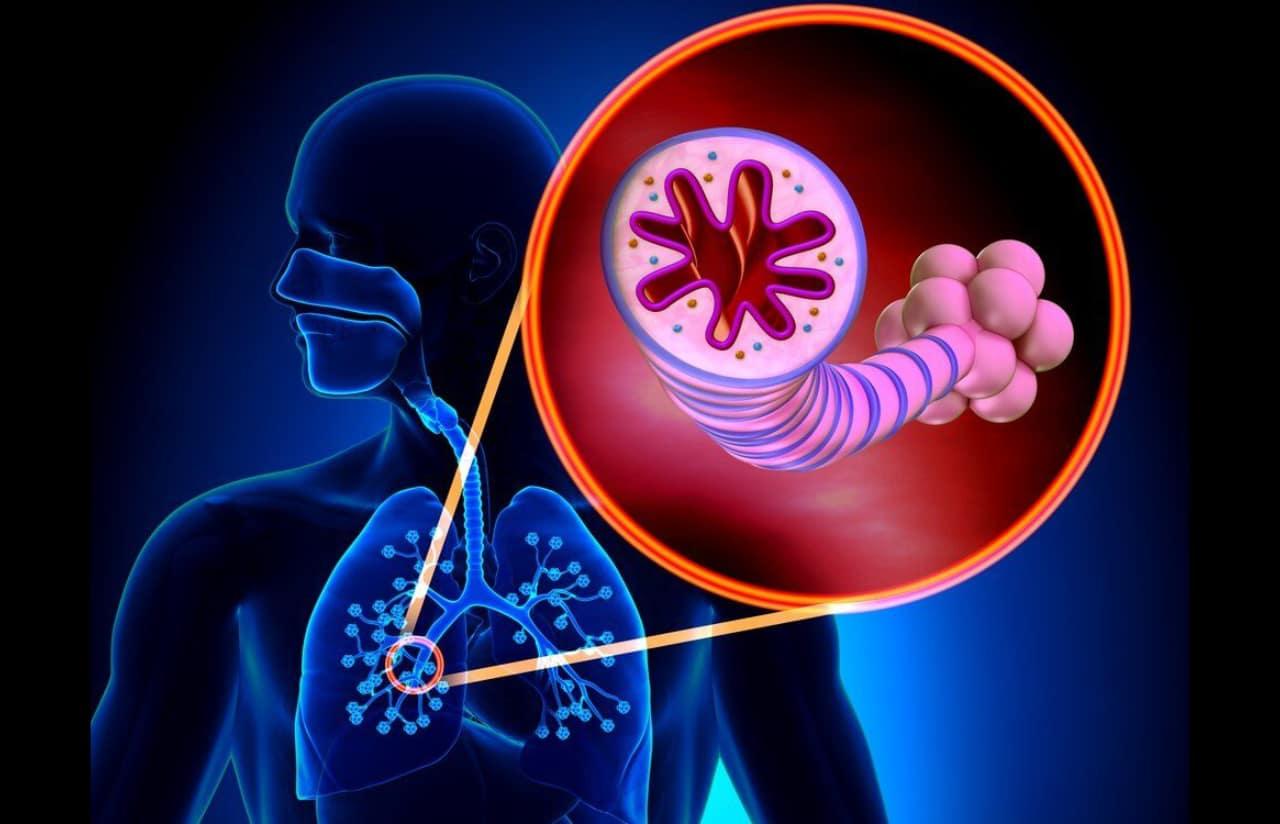 bronquiectasias en malaga