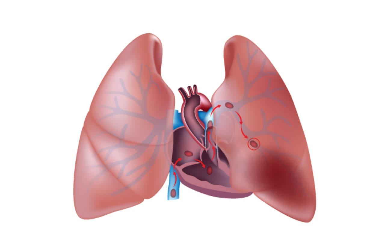 enfermedad tromboembolica pulmonar