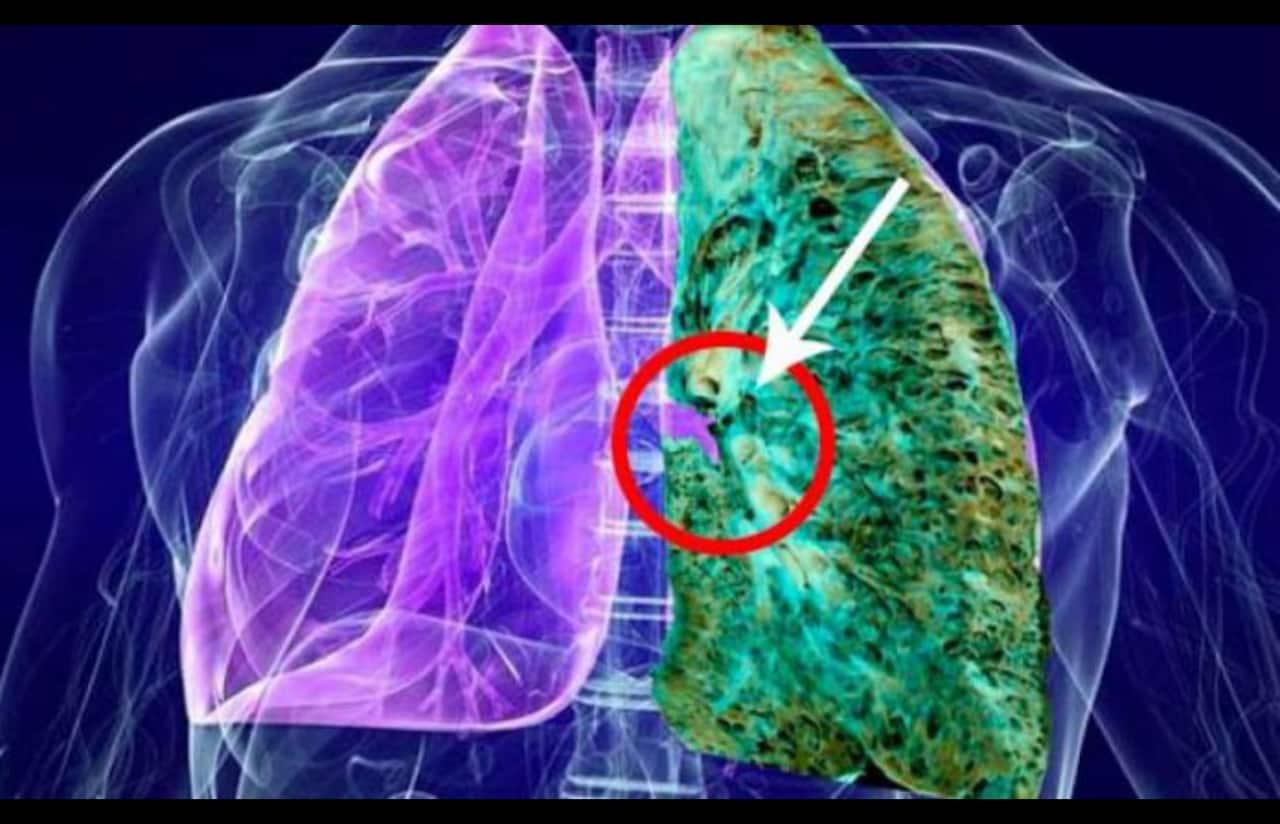 Enfermedades Pulmonares Intersticiales Difusas