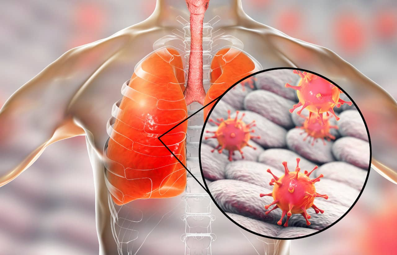 patologia infecciosa pulmonar